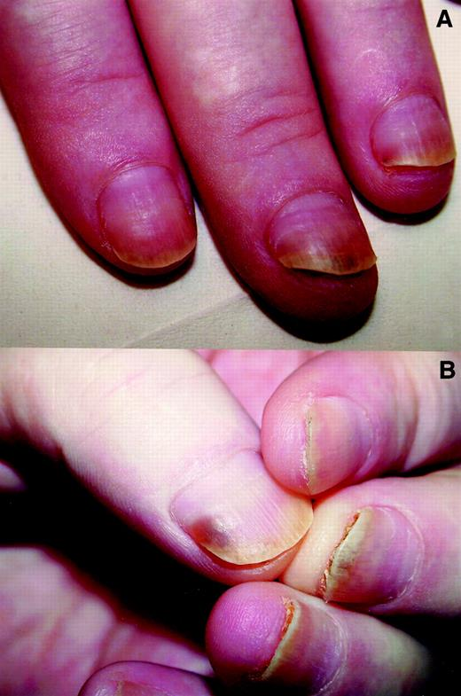 Taxane-induced nail changes: incidence, clinical presentation and ...