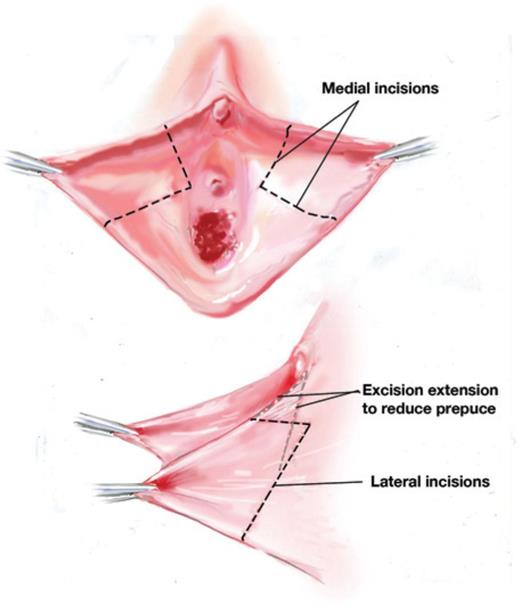 the surgical clitoris Unhooding enlarged
