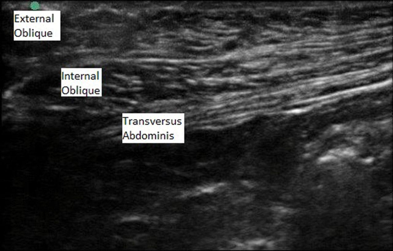 Tranversus Abdominis Plane Block During Abdominoplasty to Improve ...