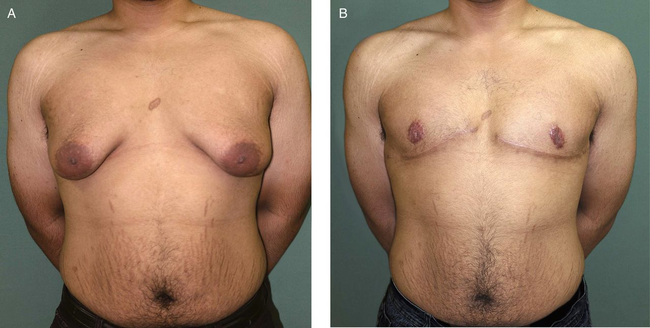 Anatomic Study of Nipple Position and Areola Size in Asian Men ...