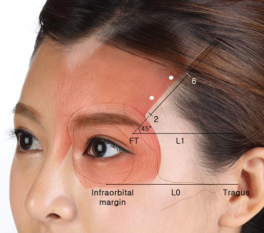 Characterizing the Lateral Border of the Frontalis for Safe and ...