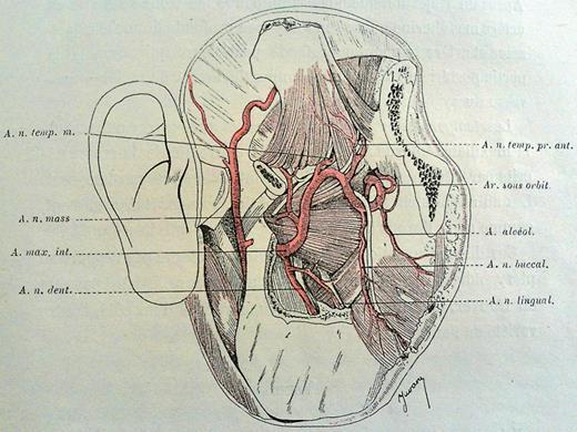 Smas Fusion Zones Determine The Subfascial And Subcutaneous Anatomy