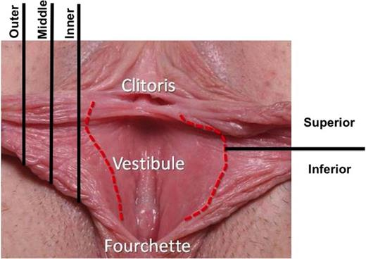Safe Labiaplasty A Study Of Nerve Density In Labia Minora And Its
