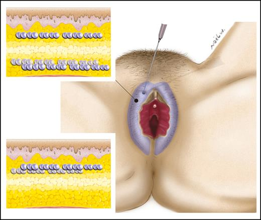 Labia Majora Augmentation: A Systematic Review of the Literature ...