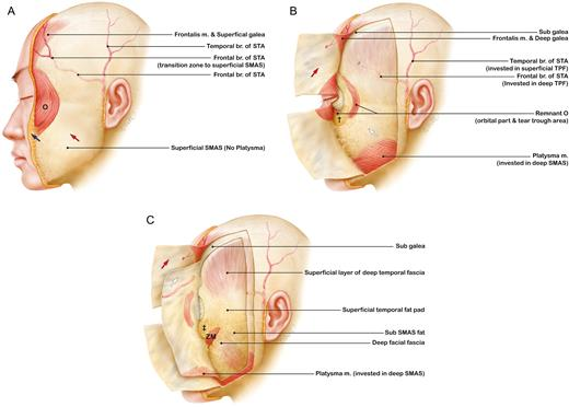 Bilayered Structure Of The Superficial Facial Fascia Aesthetic