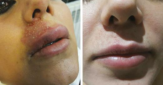 (A) This patient was a 29-year-old woman who presented to ...