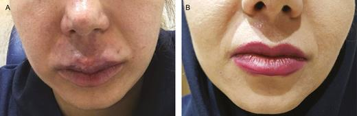 (A) This patient was a 32-year-old woman with the history ...