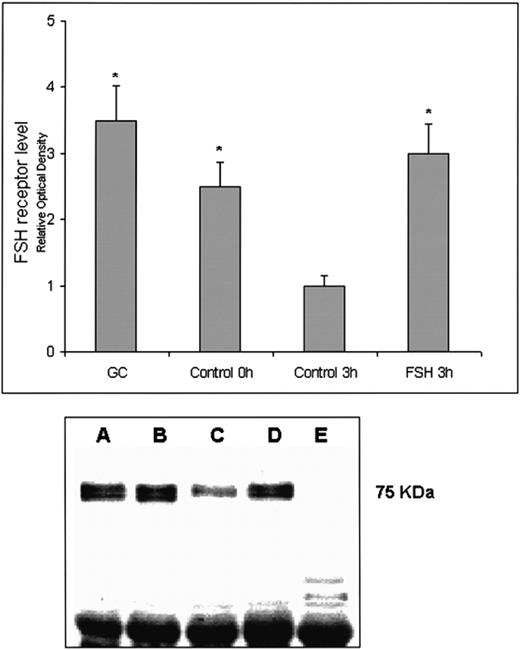 Follicle stimulating hormone receptor and its messenger ribonucleic effect of incubation of cervical tissues with fsh on the expression of the fshr protein ccuart Choice Image