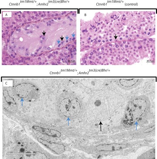 Seminiferous Tubule Degeneration and Infertility in Mice with ...