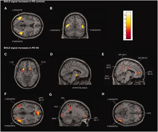 Transverse, coronal and sagittal sections of statistical parametric maps showing significant BOLD signal increases (yellow–red areas) associated with exposure to common sexual imagery in 12 Parkinson's disease (PD) control patients (A and B) and in 12 patients with Parkinson's disease with hypersexuality (PD HS) (C–H) during ON and OFF medication states. BOLD signal increases are illustrated in (A and B) left and right middle temporal gyrus (MTG) and middle occipital gyrus (MOG) (x = −48, y = −59, z = 9), (C) ventral striatum (VS) (x = 18, y = 15, z = − 11), (D) hypothalamus (x = −5, y = −4, z = −9), (E) anterior prefrontal cortex (aPFC), anterior cingulate cortex (ACC), superior parietal lobule (SPL) and posterior cingulate cortex (PCC) (x = 8, y = −16, z = 33), (F) left and right middle temporal gyrus and middle occipital gyrus and anterior prefrontal cortex (x = −8, y = 56, z = 4), and (G and H) orbitofrontal cortex (OFC), superior parietal lobule, posterior cingulate cortex, and left and right middle temporal gyrus and middle occipital gyrus (x = −24, y = 48, z = −8). The colour bar indicates z-values.