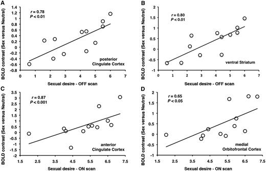 In patients with Parkinson's disease with hypersexuality, sexual desire post-exposure to sexual imagery correlates with increases in activation in (A) posterior cingulate cortex and (B) ventral striatum in the OFF medication state and with increases in activation in (C) anterior cingulate cortex and (B) and medial orbitofrontal cortex during the ON medication state.