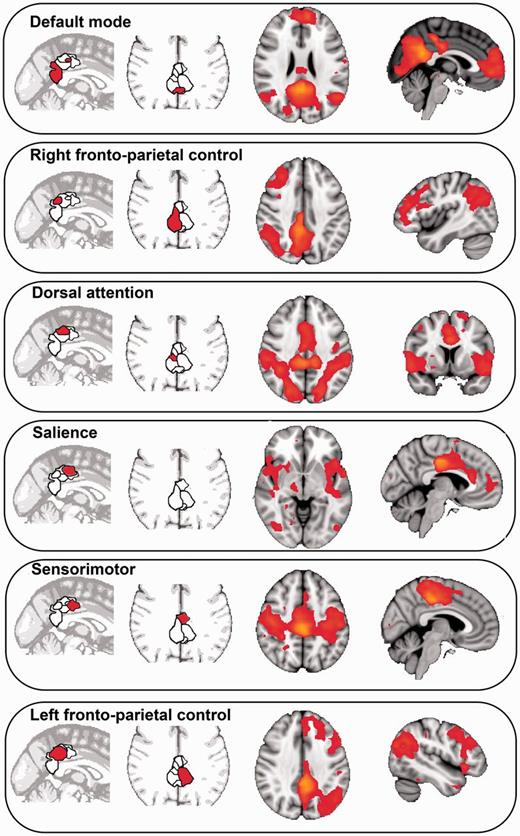 Role Of The Posterior Cingulate Cortex In Cognition And Disease