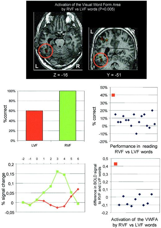 Visual Word Recognition In The Left And Right Hemispheres