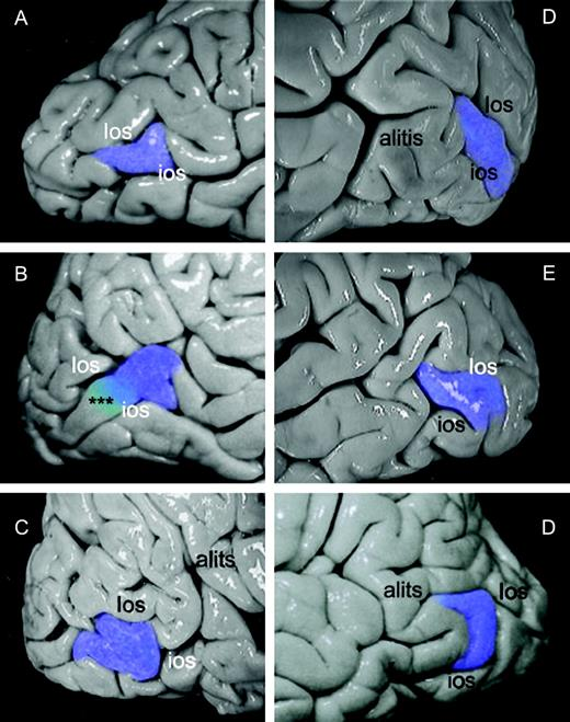 Localization Of The Human Cortical Visual Area Mt Based On Computer