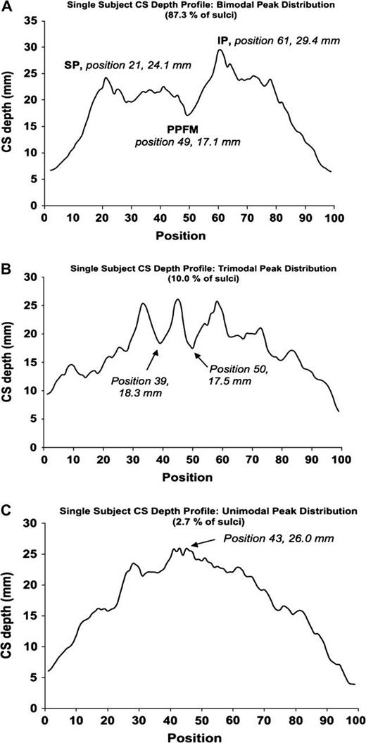 Central Sulcus: an Observer-Independent Characterization of Sulcal ...