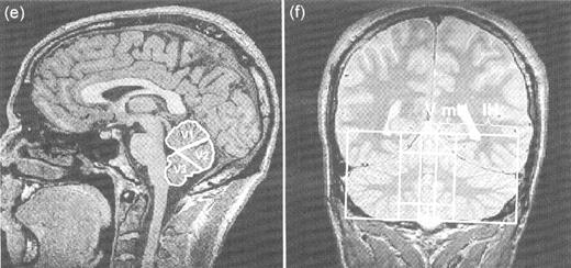 Patterns Of Age Related Shrinkage In Cerebellum And Brainstem