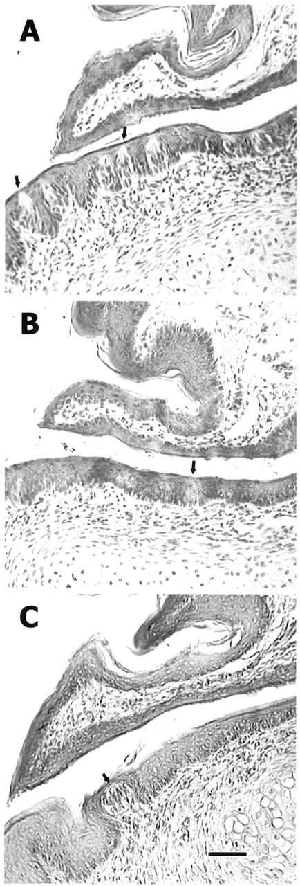 Time Course Of Taste Bud Regeneration After Glossopharyngeal Or