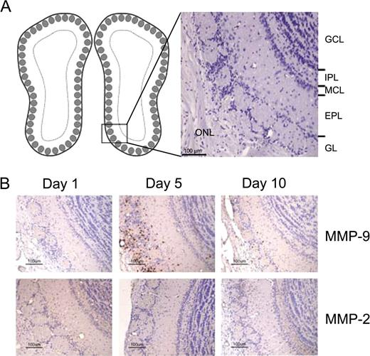 Matrix Metalloproteinase 9 And 2 Expression In The Olfactory Bulb