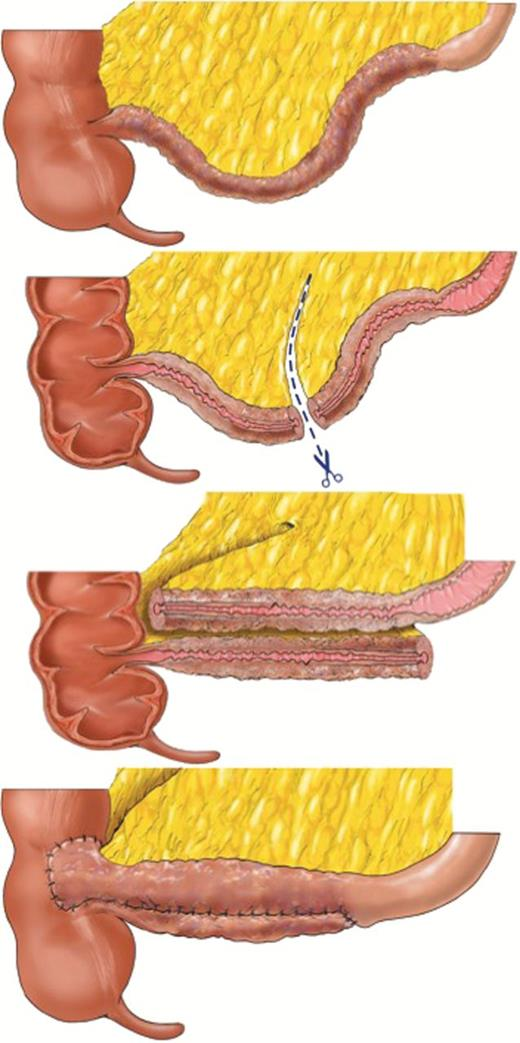Modified Side To Side Isoperistaltic Strictureplasty Over The