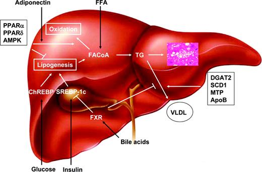 Causes and metabolic consequences of fatty liver endocrine reviews pathophysiology of fatty liver among the mechanisms involved in the pathophysiology of fatty liver ccuart Gallery