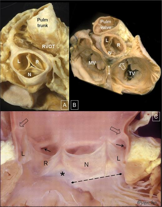 Structure And Anatomy Of The Aortic Root European Heart Journal