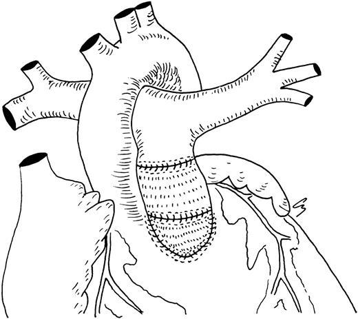 Homograft Valve Insertion For Pulmonary Regurgitation Late After