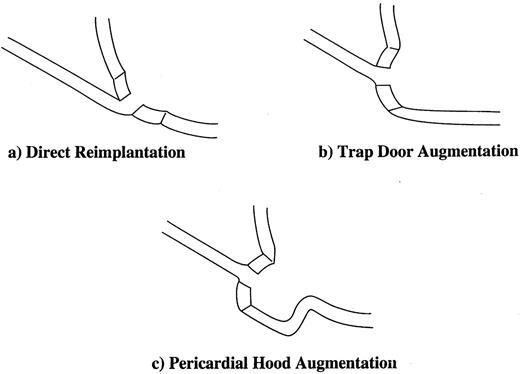 Use Of Pericardial Hoods For Maintaining Exact Coronary Artery