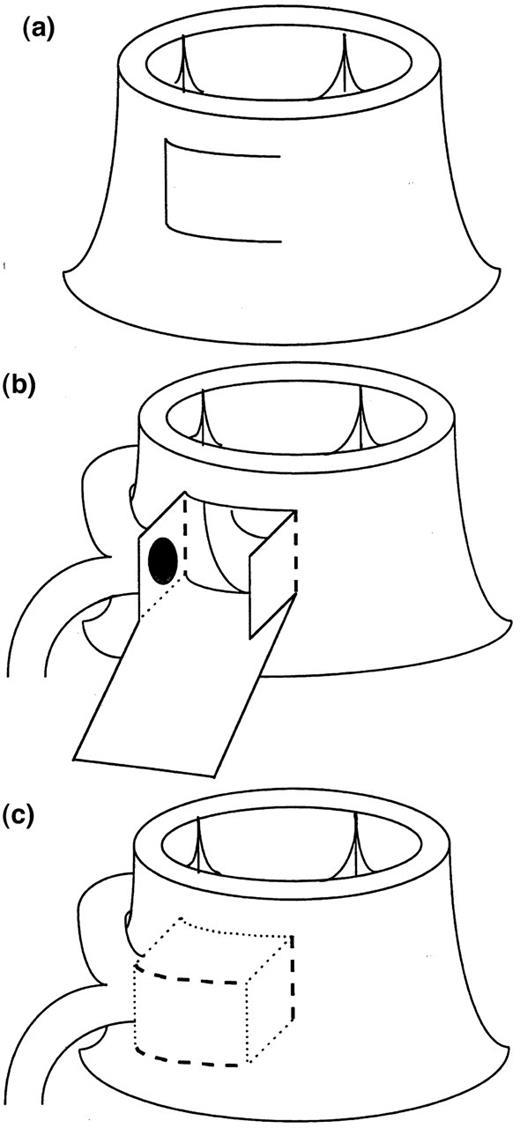 use of \'pericardial hoods\' for maintaining exact coronary artery ...