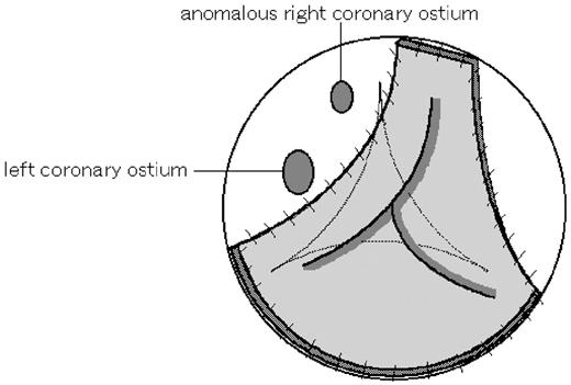 Management Of Anomalous Right Coronary Arteries Encountered During