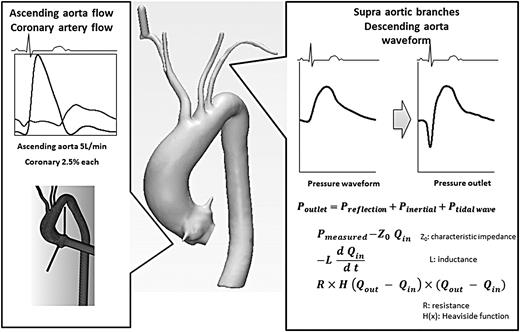 Blood Flow Analysis Of The Aortic Arch Using Computational Fluid
