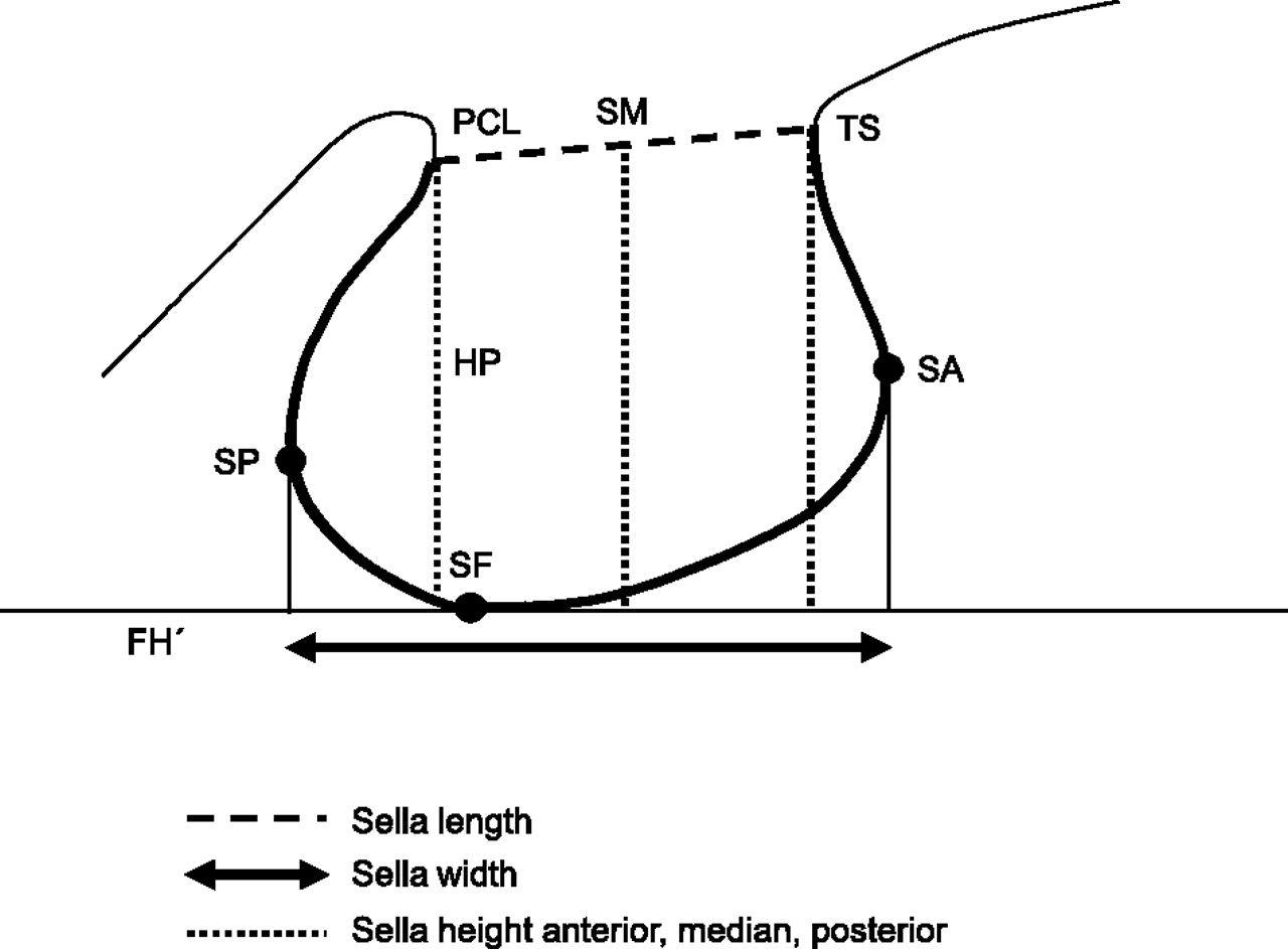 cephalometric morphometric study of the sella turcica | European ...