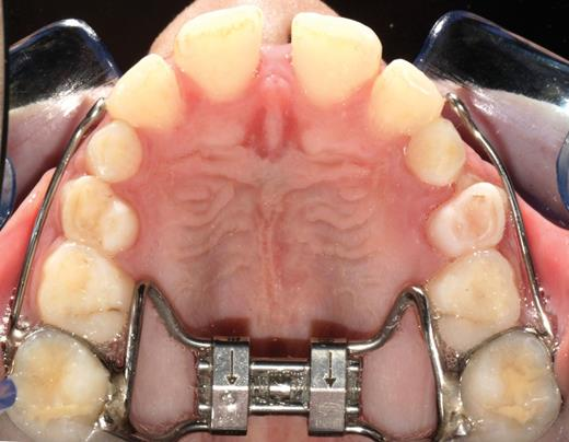 The Banded Expander