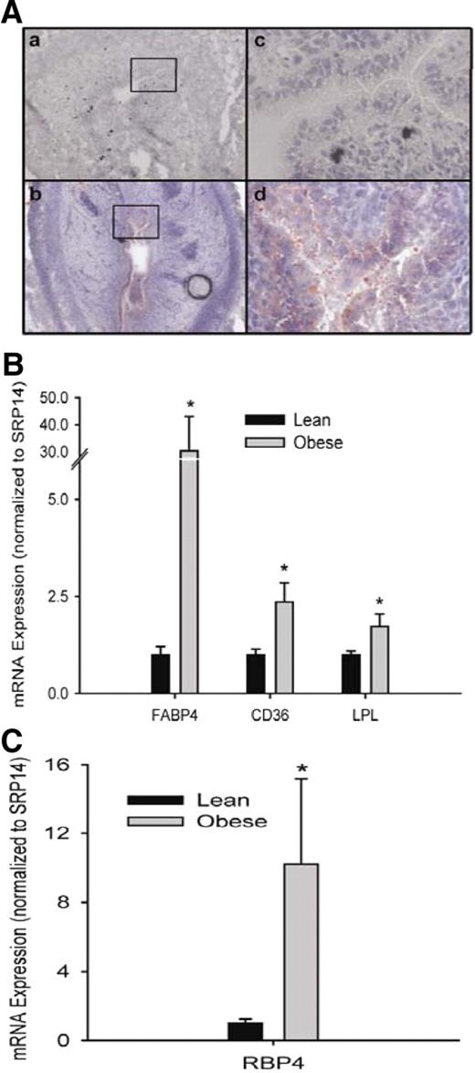 Maternal obesity promotes a proinflammatory signature in rat uterus maternal obesity increases ectopic lipid accumulation in the uterus a representative photomicrographs of uterine ccuart Gallery