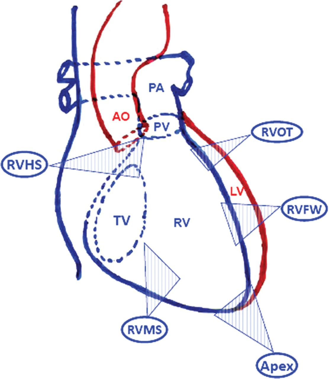 Sites of left and right ventricular lead implantation and response ...