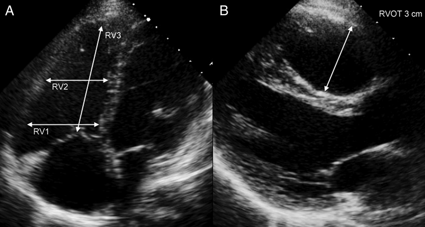 Imaging the right heart: the use of integrated multimodality imaging ...