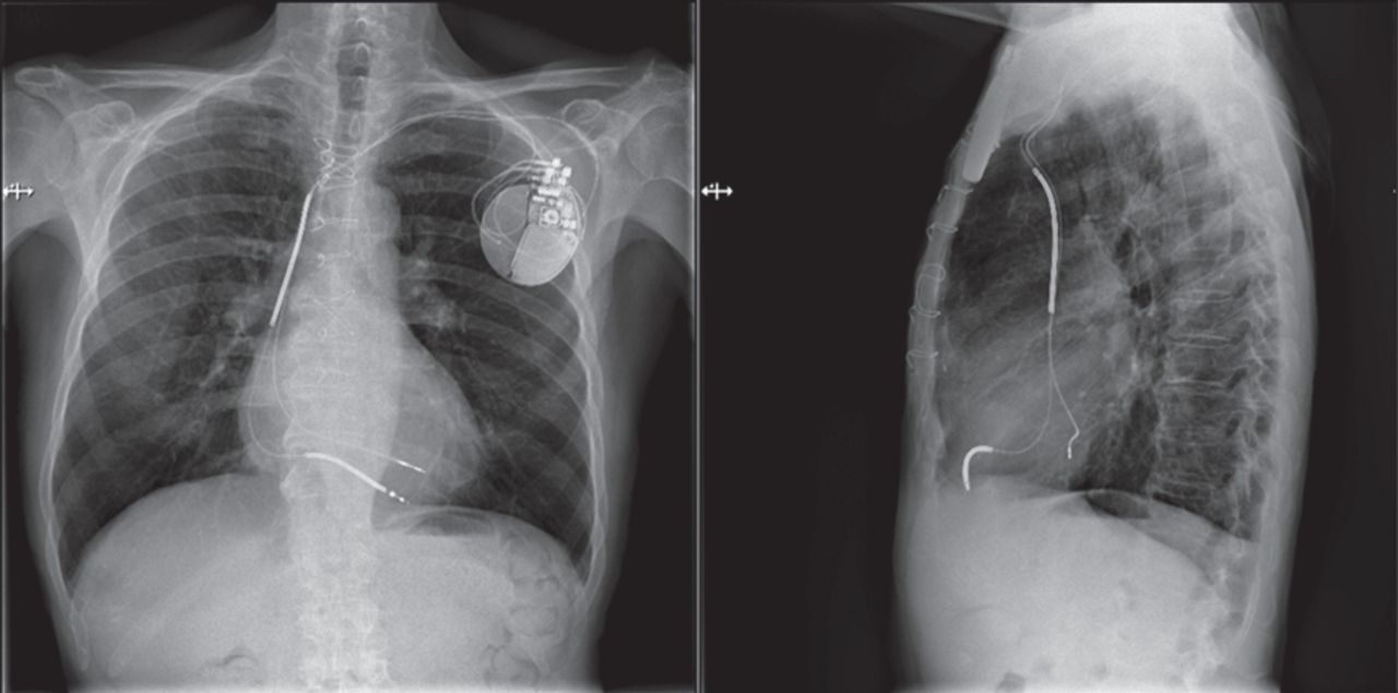Endocardial left ventricular lead placement from the left subclavian ...