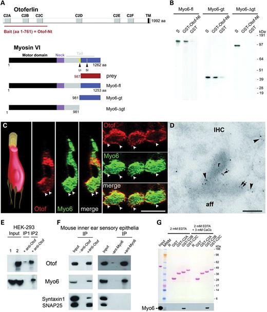 Myo6 and otoferlin co-localize at the IHC synaptic active ...