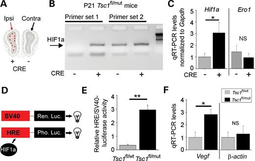 Hypoxia inducible factor 1a is a tsc1 regulated survival factor in hif1a mrna and hif1a activity are up regulated in newborn tsc1null neurons a ccuart Image collections