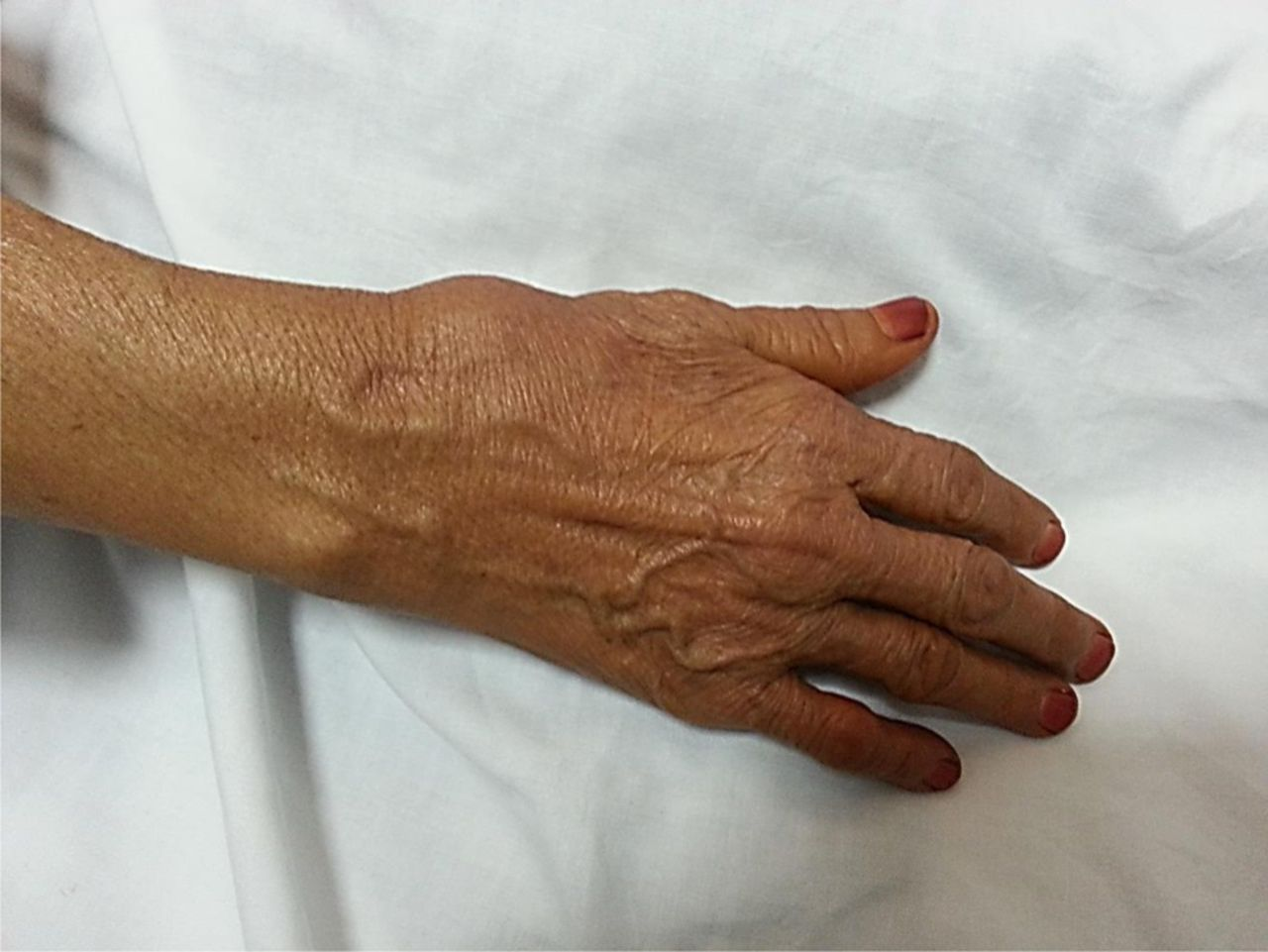 True Idiopathic Saccular Aneurysm Of The Radial Artery Journal Of