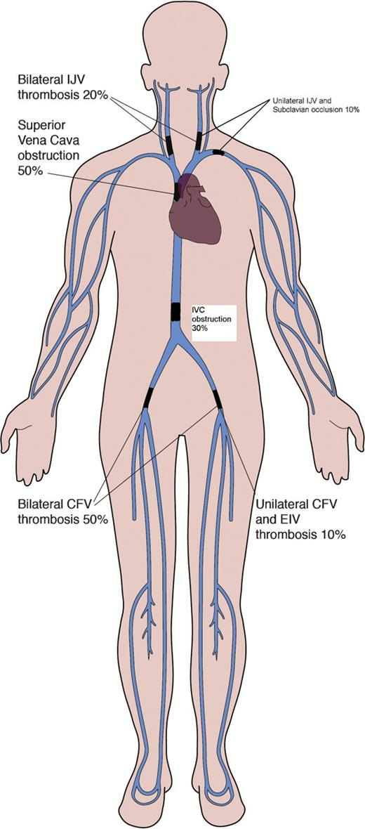 Use of the femoral artery route for placement of temporary catheters ...