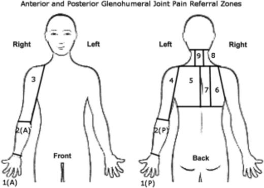 Glenohumeral Joint Pain Referral Patterns A Descriptive Study